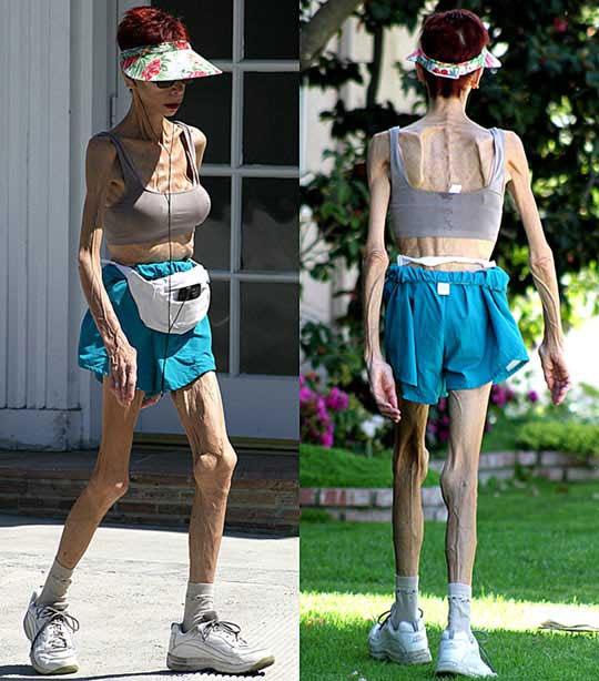 Mentální anorexie - dá se léčit